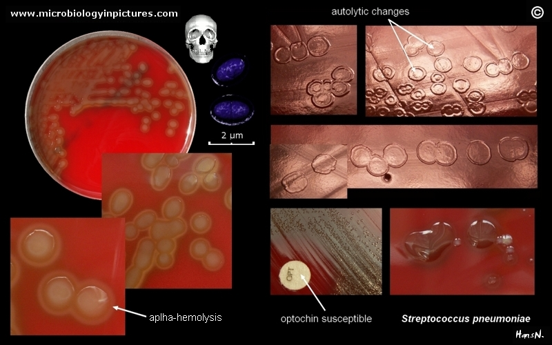streptococcus pneumoniae on agar plate