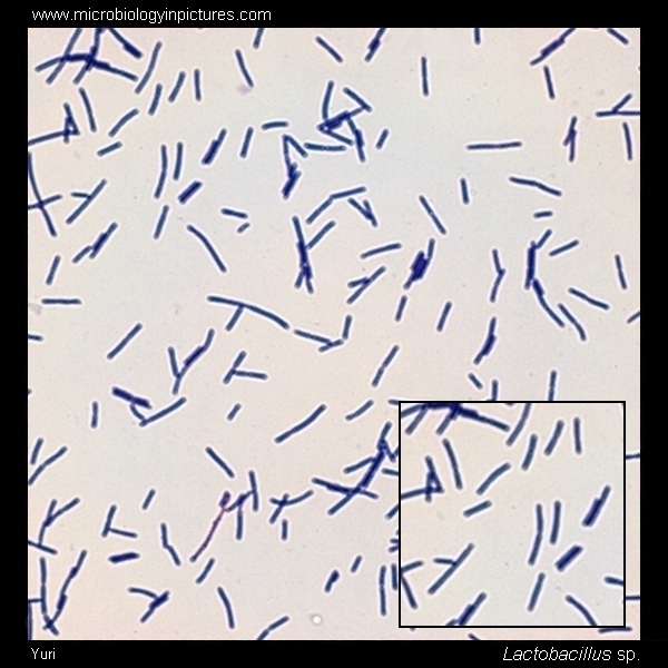 Lactobacillus Gram-stain and cell morphology ...