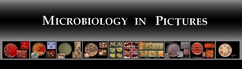 Head Microbiology in Pictures